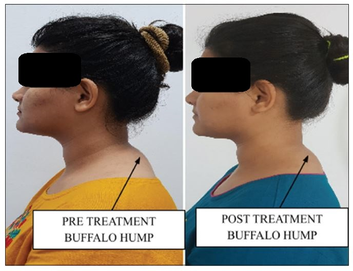 Women mith Buffolo Hump - pre post treatment